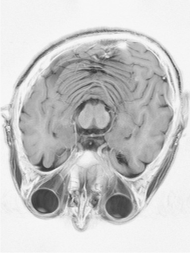 MRI of my skull showing Deformational Plagiocephaly or Deformed or Oblique Skull